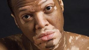 Black White man
